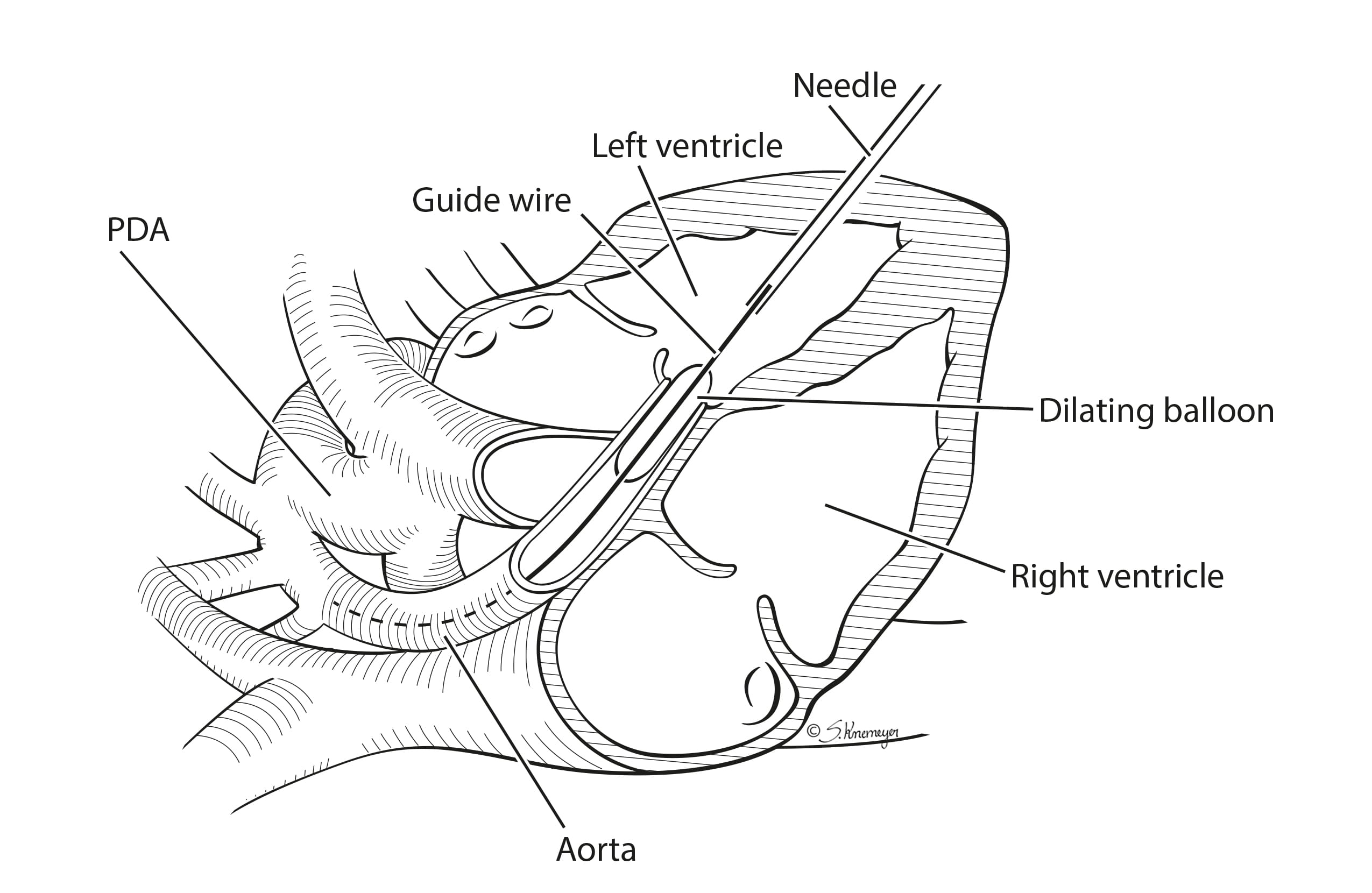 Fetal cardia intervention aortic stenosis illustration