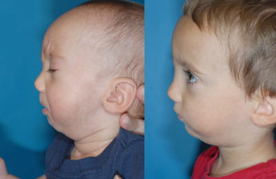 Hemifacial Microsomia: Jaw Reconstruction with Rib Graft (left cheek; left image pre-op; right image post-op)