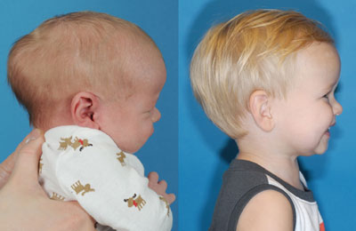 Craniosynostosis (right full cheek view; left image younger and pre-op; right image older and post-op)