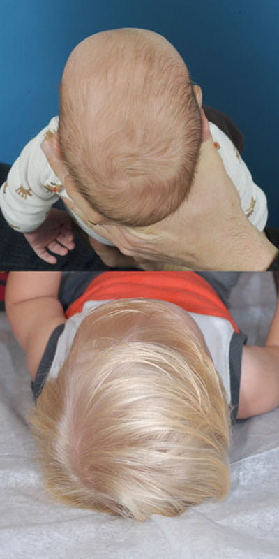 Craniosynostosis (top of head view; top image younger and pre-op; bottom image older and post-op)